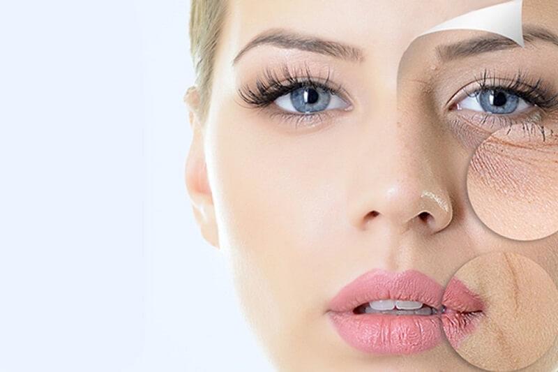 Laser CO2 điều trị nhiều vấn đề da cùng một lúc