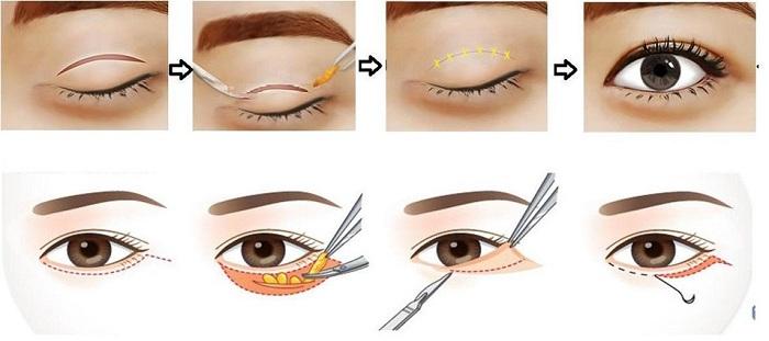 Bóc mỡ mí mắt chữa sụp mí có an toàn và hiệu quả không? 1