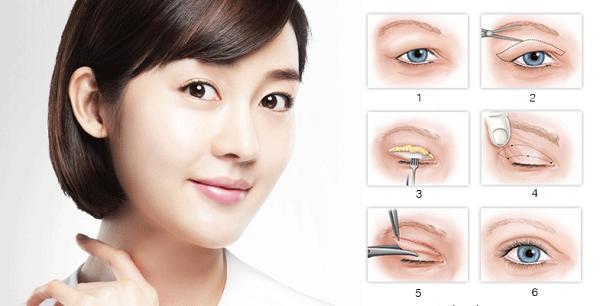 Thử ngay 3 cách chữa mí mắt bị sụp giúp đôi mắt to tròn đẹp trở lại 4