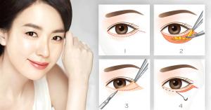 Bóc mỡ mí mắt chữa sụp mí có an toàn và hiệu quả không? 2