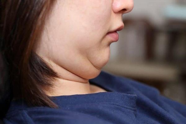 Mách nhỏ đến bạn cách giảm nọng cằm chỉ sau 1 tuần
