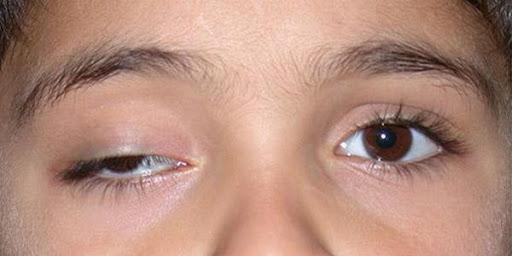 Thử ngay 3 cách chữa mí mắt bị sụp giúp đôi mắt to tròn đẹp trở lại 1