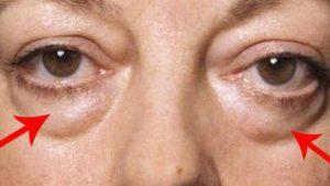 Hối tiếc nếu bạn chưa biết cách loại bỏ bọng mắt đơn giản này 1
