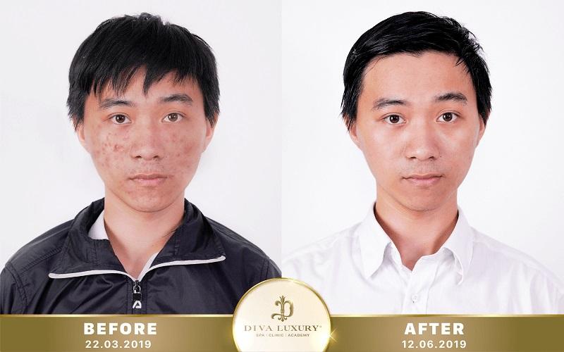 kết quả khách hàng trị mụn tại DIV Luxury