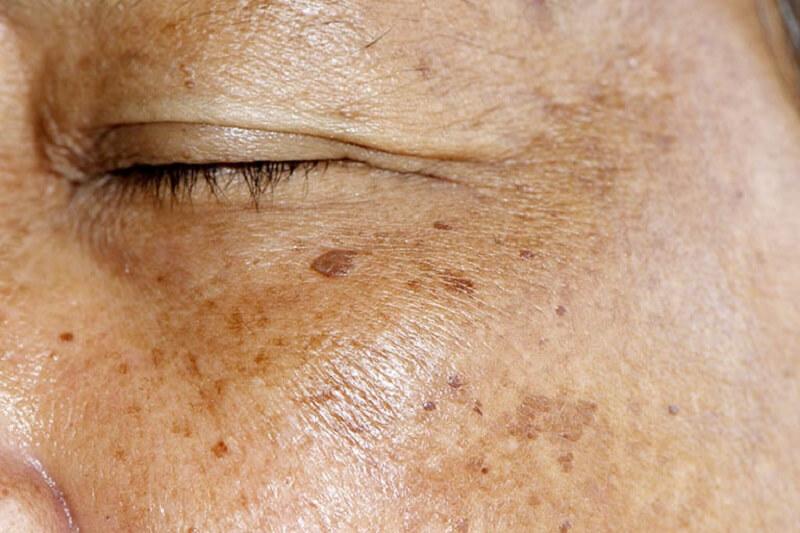 Nguyên nhân gây nám thường gặp là tác động của tia UV