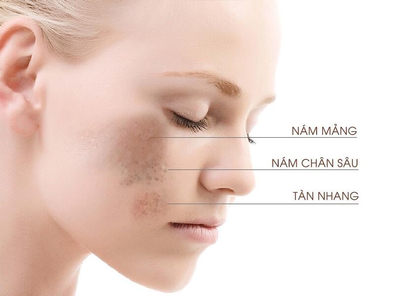 Nám da là hiện tượng hắc tố melanin sản sinh quá mức tại lớp đáy và trung bì